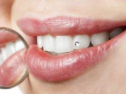 die-fnf-empfehlenswertesten-zahnzusatzversicherungen